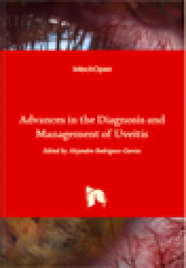Advances in the diagnosis and management of uveitis