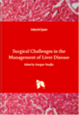 Surgical challenges in the management of liver disease